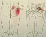 Stiff Shoulder Caused by Hip Problem