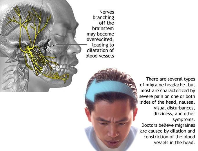 Depakote Side Effects Long Term