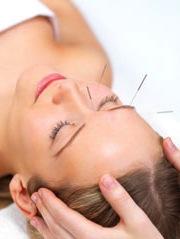 acupuncture migraine
