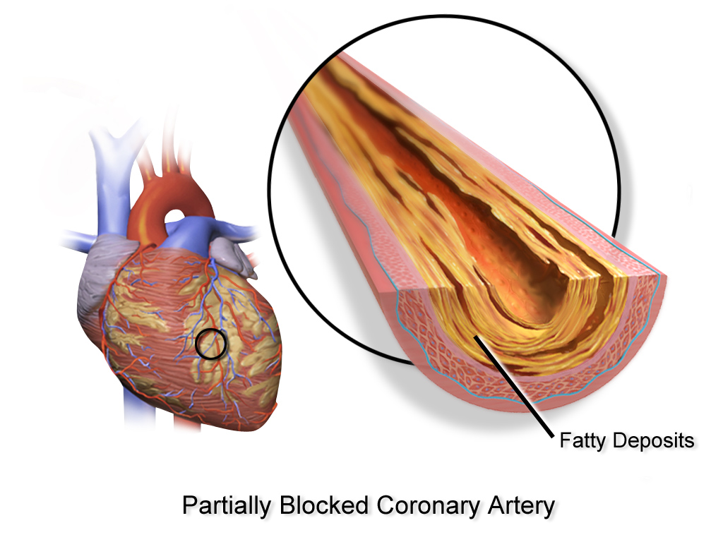 artery coronary disease study thesis
