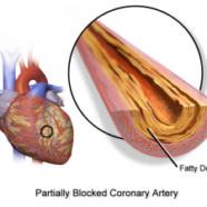 Acupuncture For Coronary Heart Disease